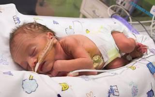 На каком сроке можно родить жизнеспособного ребенка