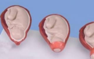 Как происходит раскрытие шейки матки перед родами