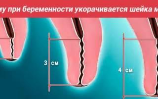 Почему укорачивается шейка матки при беременности