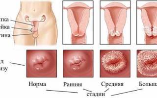 Эрозия шейки матки при беременности выделения