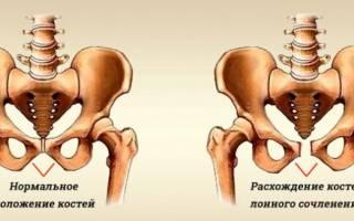 Расхождение лобковой кости при беременности