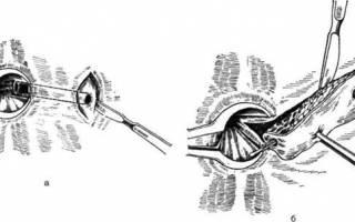 Особенности лечения парапроктита после операции