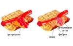 Фибриноген при беременности норма во втором триместре