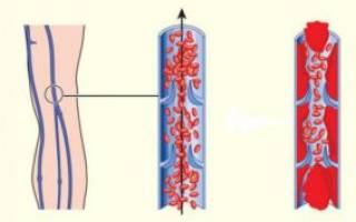 Нарушение маточного кровотока 1 а степени