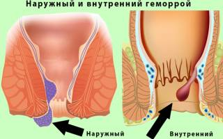Геморрой от нервов